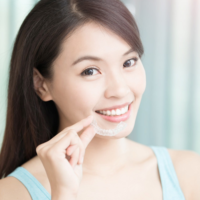 Striping reasons that make invisalign teen chinese teen